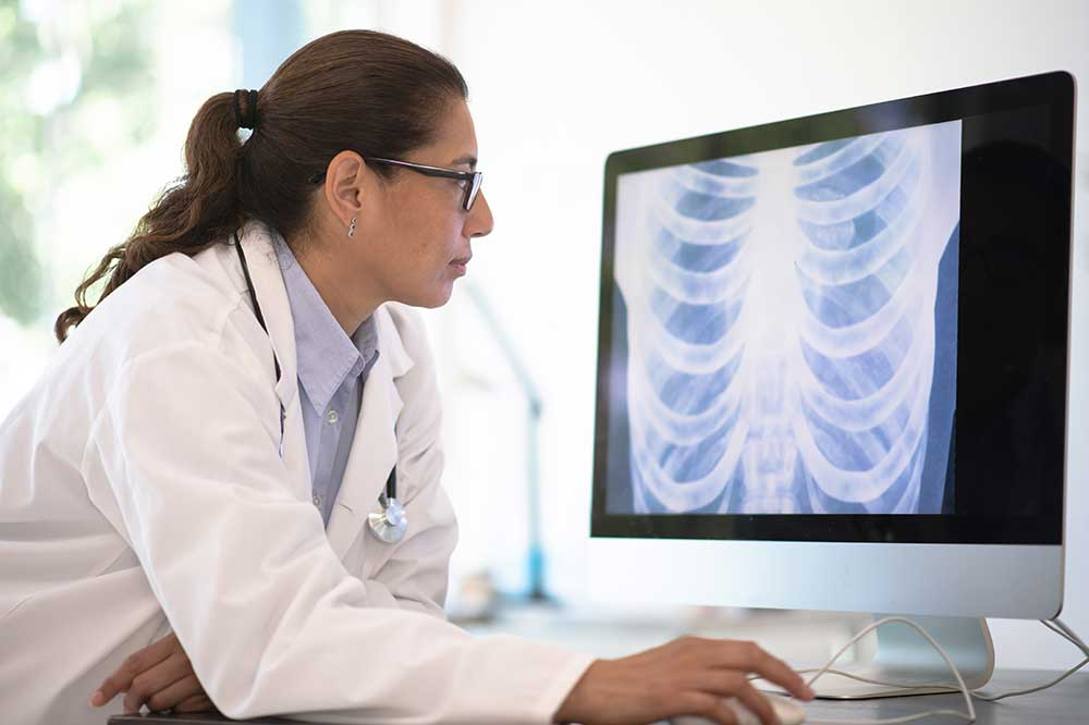 A female doctor looking at an xray of a chest on a computer